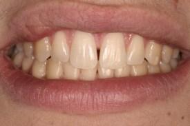 Buckhead Dentist Bonding 1