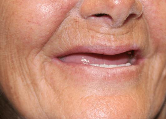 dentures dallas