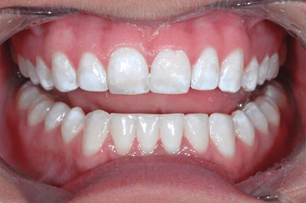 porcelain veneers dallas