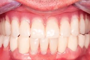 micro dental implants dallas