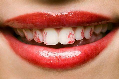 lipstick touching teeth