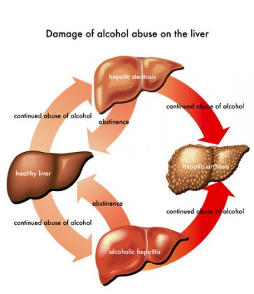 cirrhosis-liver-from-alcohol-abuse