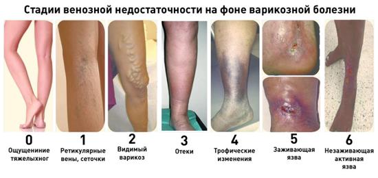 https://budtezzdorovy.ru варикозная болезнь