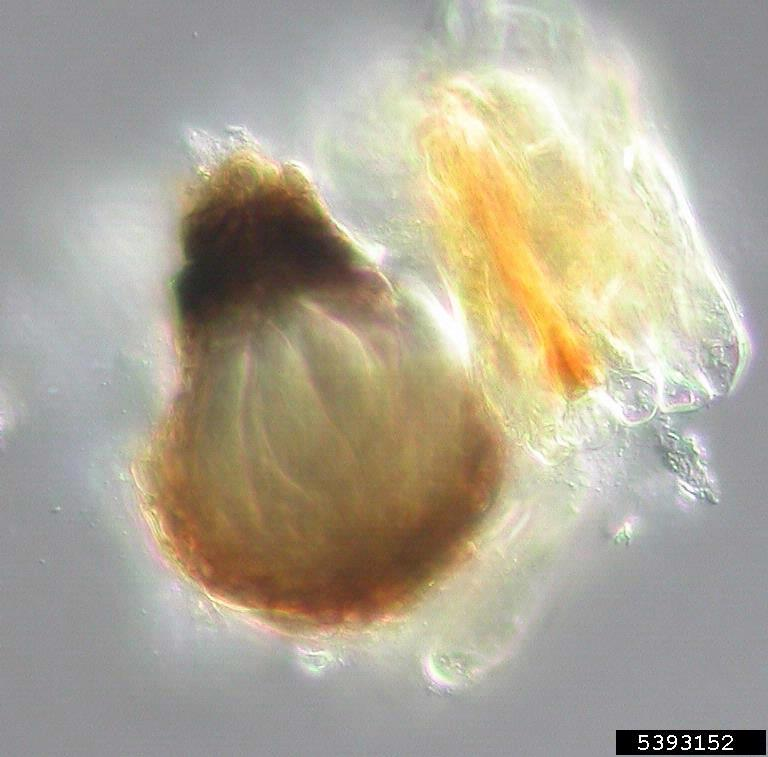 Black Sigatoka Disease Mycosphaerella Fijiensis On