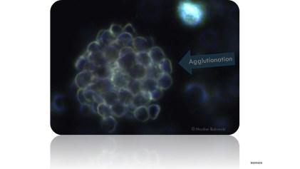 Erythrozyten Agglutination