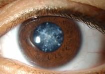 gambar mata katarak