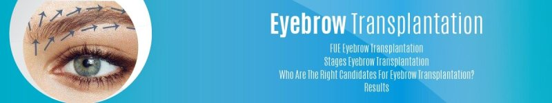 Eyebrow Transplantation-01