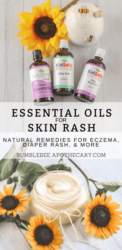 This is the best list of essential oils for skin rash. There are links to where I can buy them, too. I needed this! #essentialoil #eczema #diaperrash #skinrash #remedy