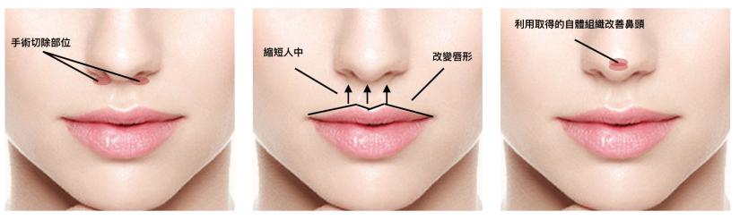 同時改善唇形、人中過長的鼻頭塑形手術
