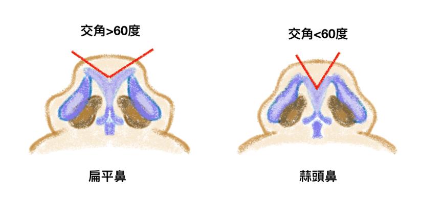 扁平鼻的鼻頭