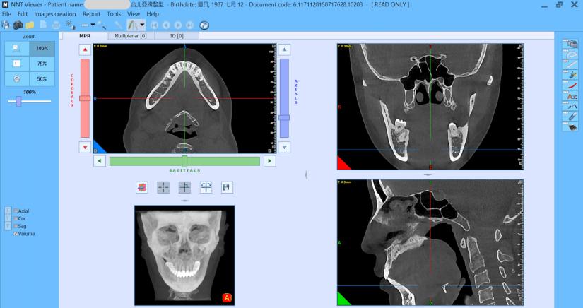 斷層掃描 下巴整形 3D列印墊下巴 3D列印模擬技術