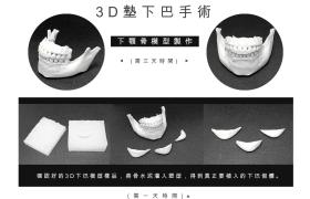 下巴整形 3D列印