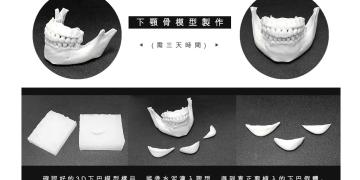 下巴整形 3D列印 填充物的材料