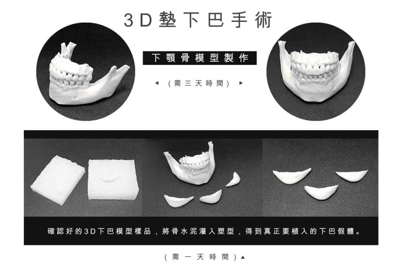 3D列印墊下巴