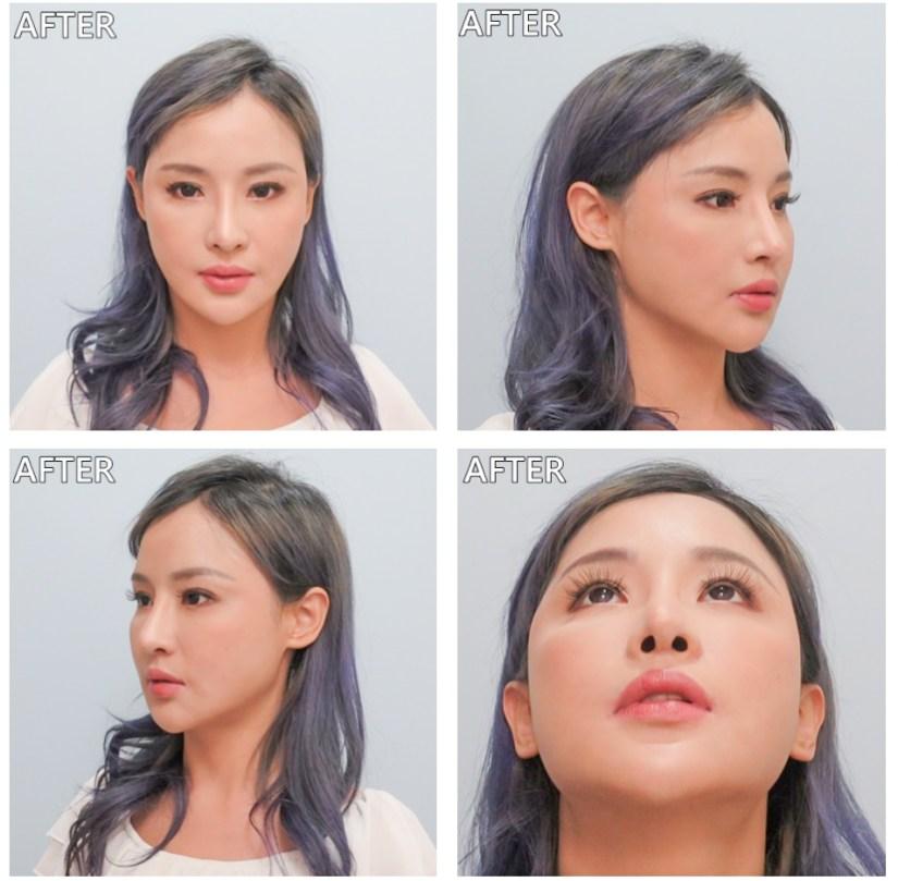 整形外科 謝宇軒醫師 三段式隆鼻 鼻重修 二次隆鼻