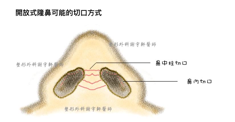 開放式隆鼻 韓式隆鼻 鼻整形 鼻部切口