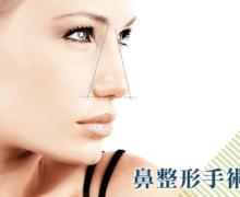 隆鼻 鼻整形手術