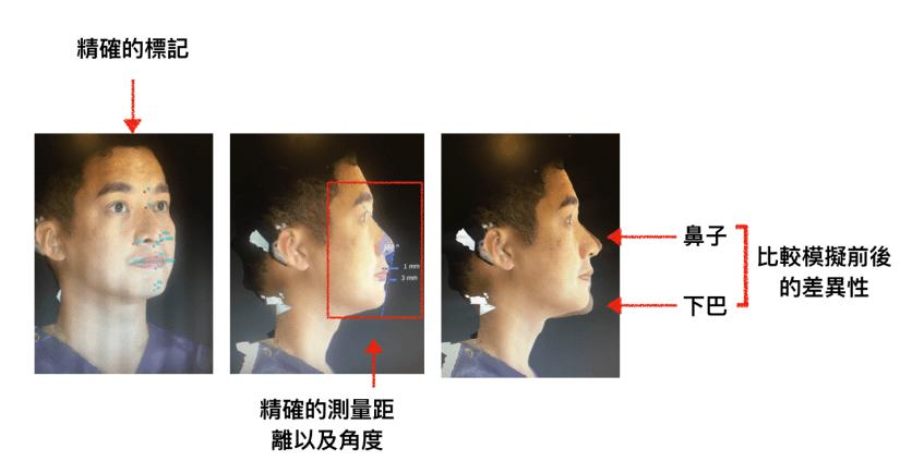 VECTRA 3D 立體影像模擬系統