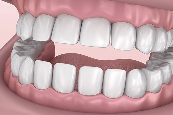 Complex Gum Treatments