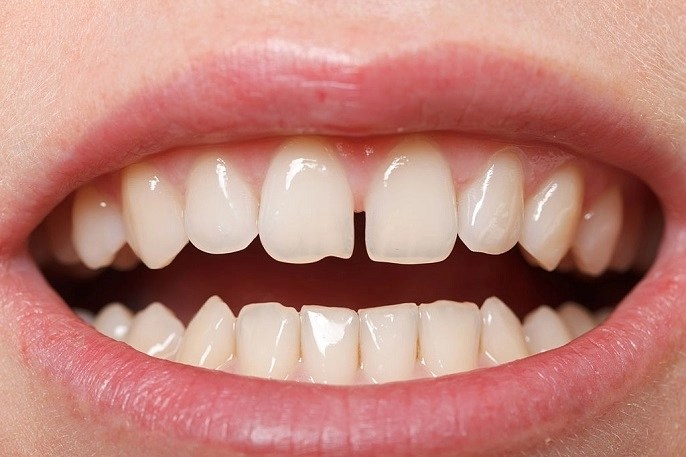 How to Fix Gaps in Your Teeth