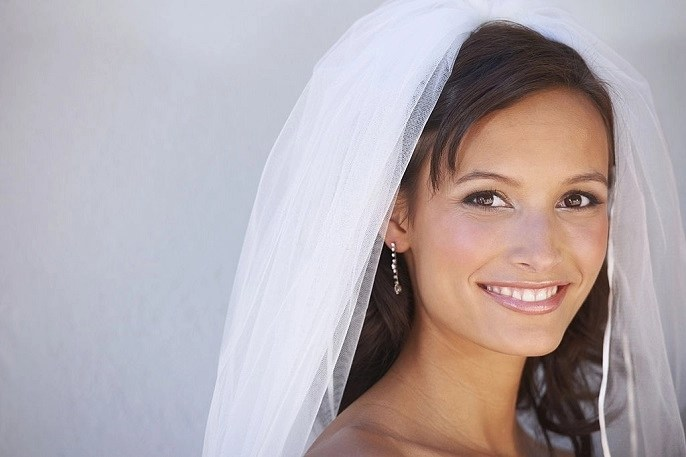 Get Your Wedding Day Smile