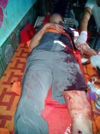 သေနတ်ပစ်သတ်ခံအမျိုးသမီး(MNA)