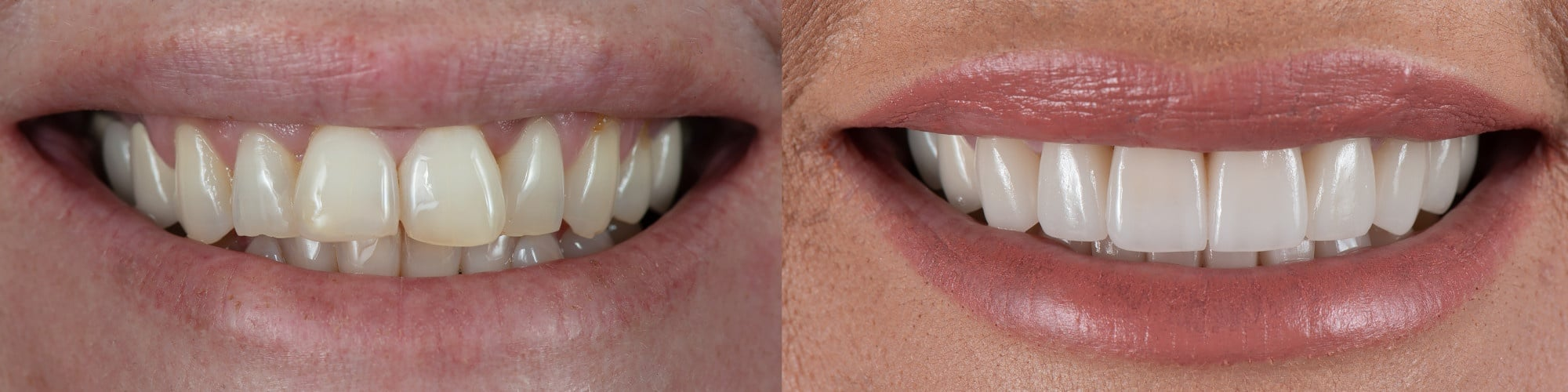 veneers before-after