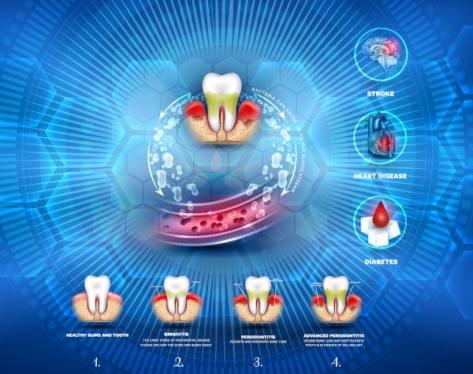 Zubni kamenac uzrokuje organska oštećenja sustava