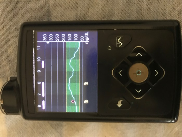 Periods of no basal or microbolus with the Medtronic Minimed 670G Auto Mode