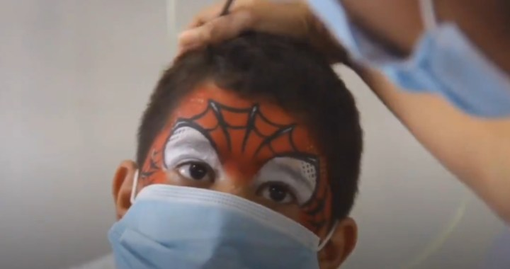 Garrahan: maquillan a niños con quemaduras graves para estimular su recuperación