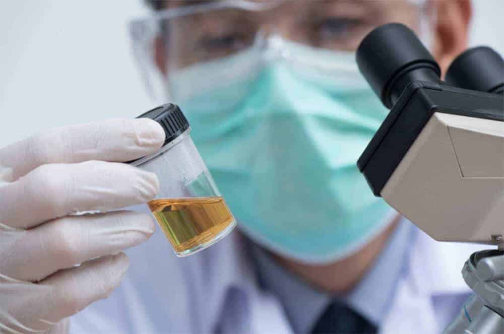 How Urine Test Works