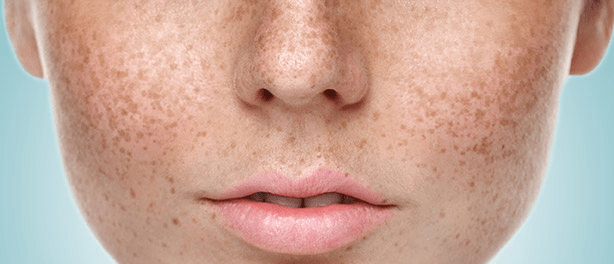 Best Cream To Remove Dark Spots On Face