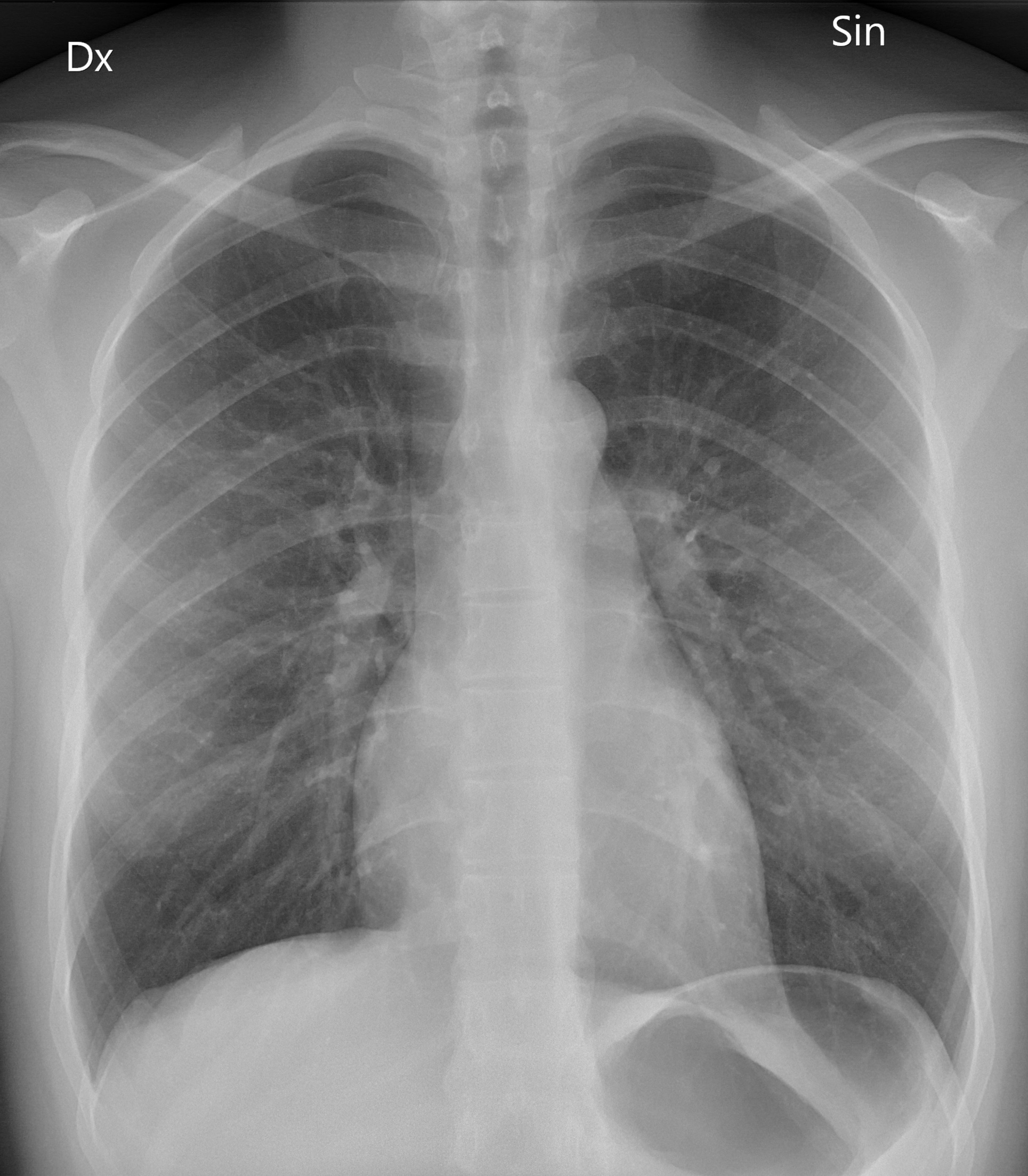 Normal Chest Xray 4