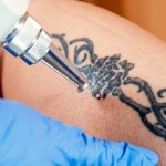 Laser Tattoo Removal Is The Best Method To Remove A Tattoo