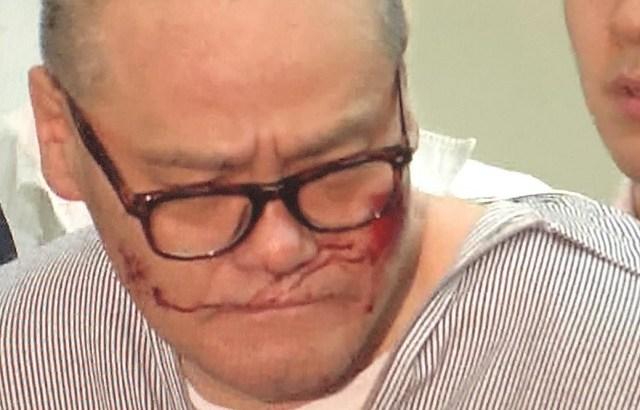 阿部勝容疑者が韓国籍の李興宗を射殺したのはカラオケ館!逮捕時の傷は?返り血か?所持していた拳銃の恐怖。