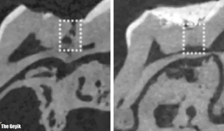 Alzheimer İlacı Diş Çürüklerini Tedavi Edebiliyor