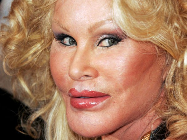 Jocelyn-Wildenstein-5176301_1