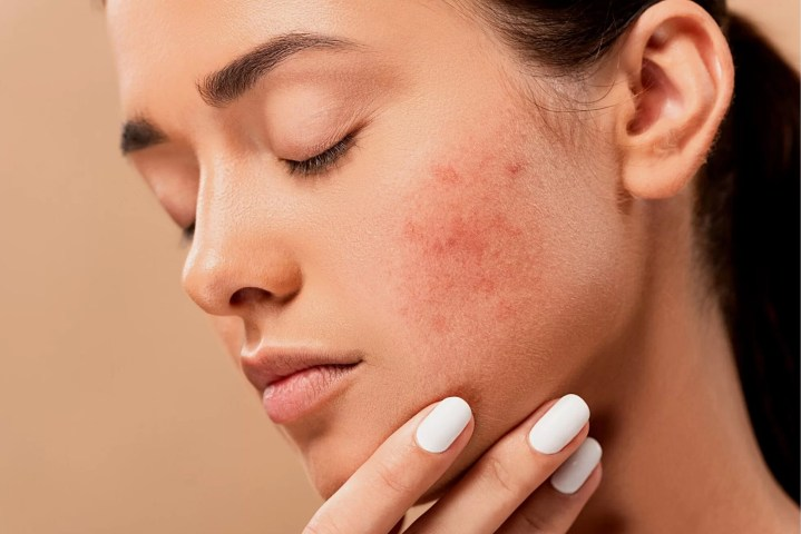 Acne issues, Get Rid of Acne During Monsoon