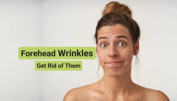 How to get rid of forehead wrinkles fast without botox