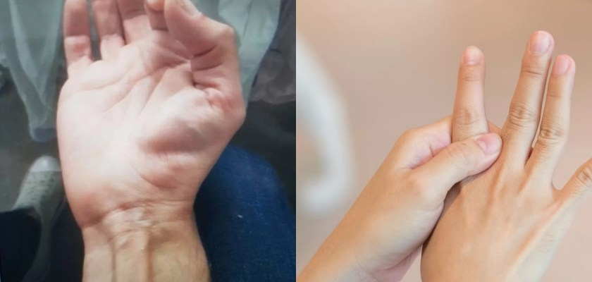How to stop Finger twitching causes treatmants, thumb twitching causes, pinky twitching
