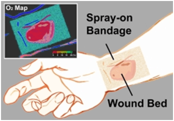SMART bandages can map oxygen concentrations in skin burns and other wounds.