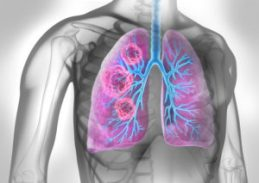Long Live the Lung