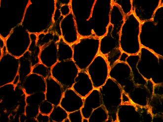 microRNA nanoparticle