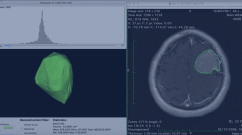 meningioma project screenshots