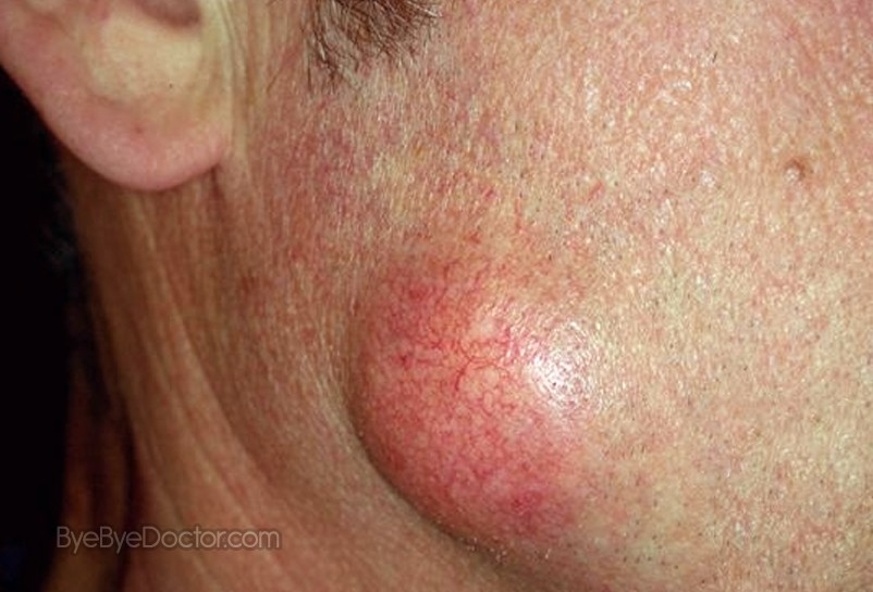 Epidermoid Cyst Pictures Treatment Removal Symptoms