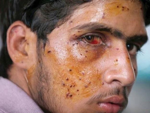 بھارتی فورسز کی جانب سے پیلیٹ گنز کے استعمال کی وجہ سے سیکڑوں کشمیری جزوی طور پر بینائی سے محروم ہوچکے ہیں۔ فوٹو : فائل