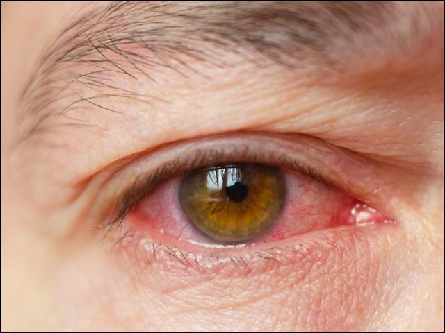 گلابی آنکھیں بھی کورونا وائرس کی علامت ہوسکتی ہیں، چینی ماہرین