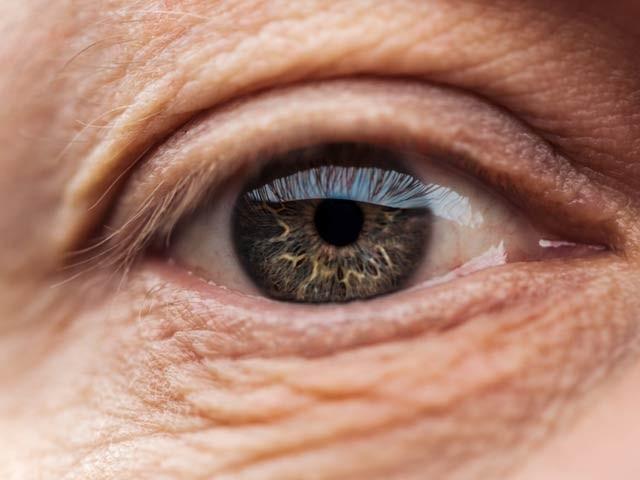 جین تھراپی سے نابیناپن دور کرنے میں اہم کامیابی