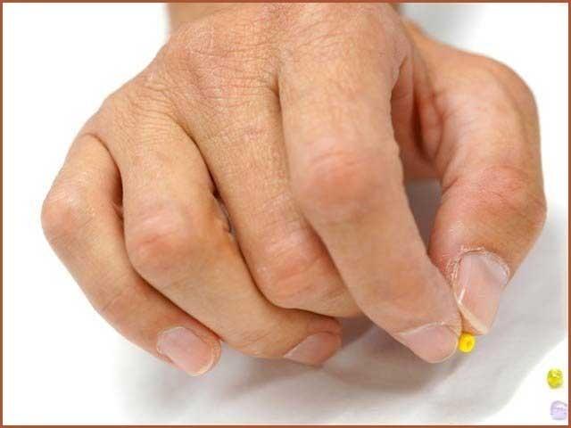 دماغی چوٹ سے مفلوج شدہ ہاتھوں کو بحال کرنے کا نیا طریقہ کامیاب