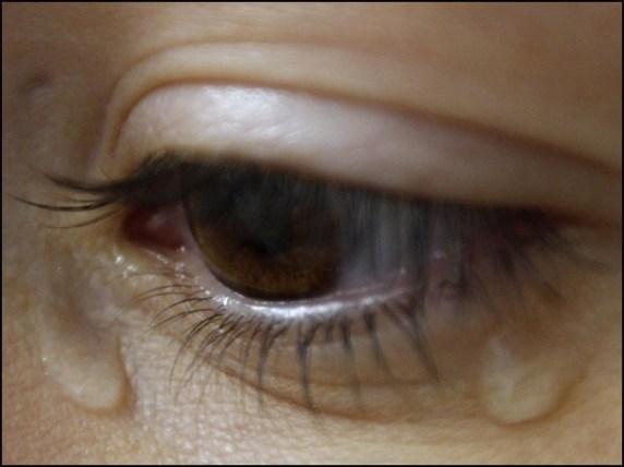 تجربہ گاہ میں آنسو بہانے والے غدود کی تیاری